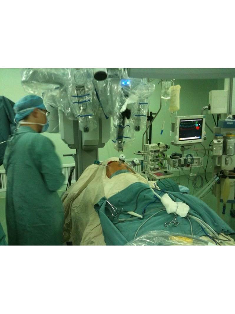 国内率先开展达芬奇机器人系统全程食管癌手术