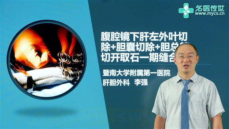 李强:腹腔镜下肝左外叶切除+胆囊切除+胆总管切开取石一期缝合