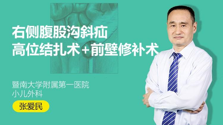 张爱民:右侧腹股沟斜疝高位结扎术+前壁修补术