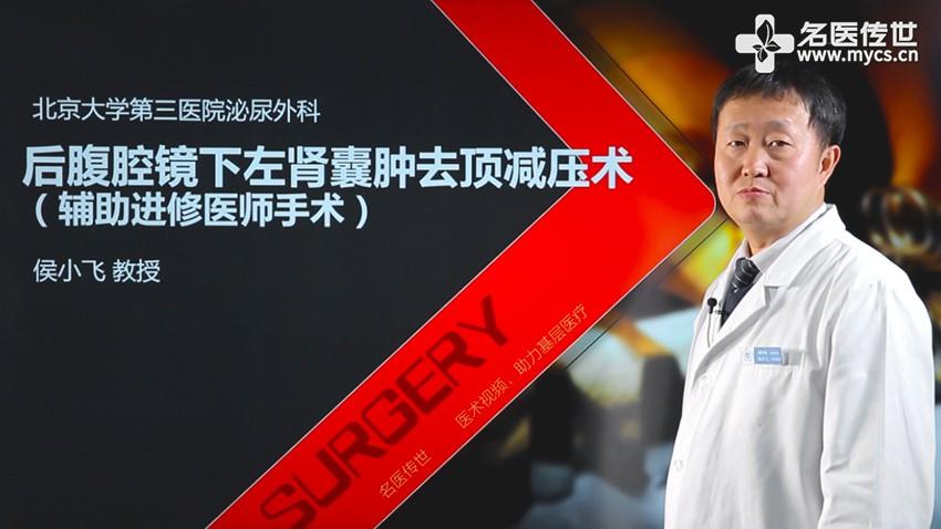 侯小飞:后腹腔镜下左肾囊肿去顶减压术(辅助进修医生手术)