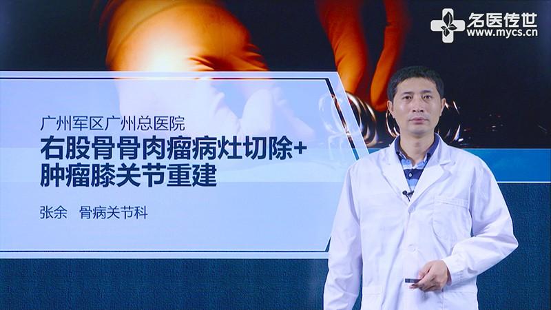 张余:右股骨骨肉瘤病灶切除+肿瘤膝关节重建(第1P-总2P)