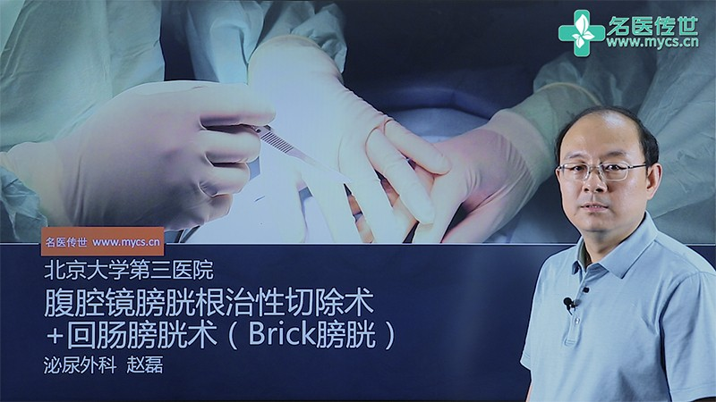赵磊:腹腔镜膀胱根治性切除术+回肠膀胱术(Brick膀胱)