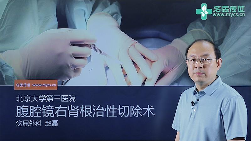 赵磊:腹腔镜右肾根治性切除术