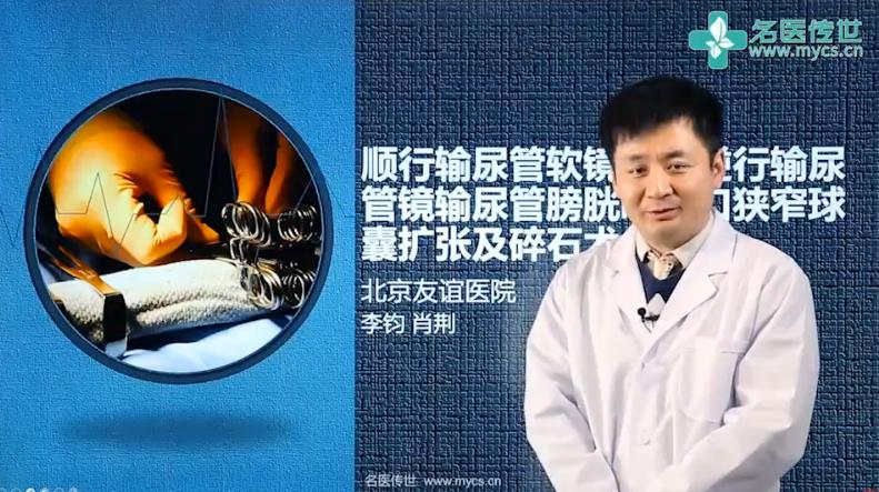 李钧:顺行输尿管软镜联合逆行输尿管镜输尿管膀胱吻合口狭窄球囊扩张及碎石术(第1P-总2P)