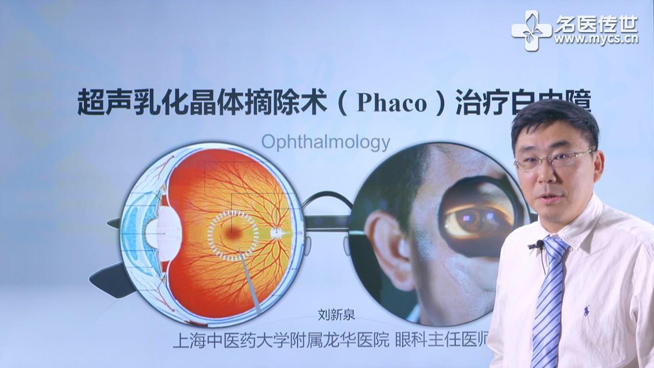 刘新泉:超声乳化晶体摘除术(Phaco)治疗白内障