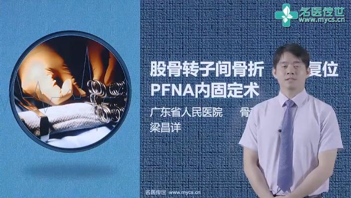 梁昌详:股骨转子间骨折 闭合复位PFNA内固定术