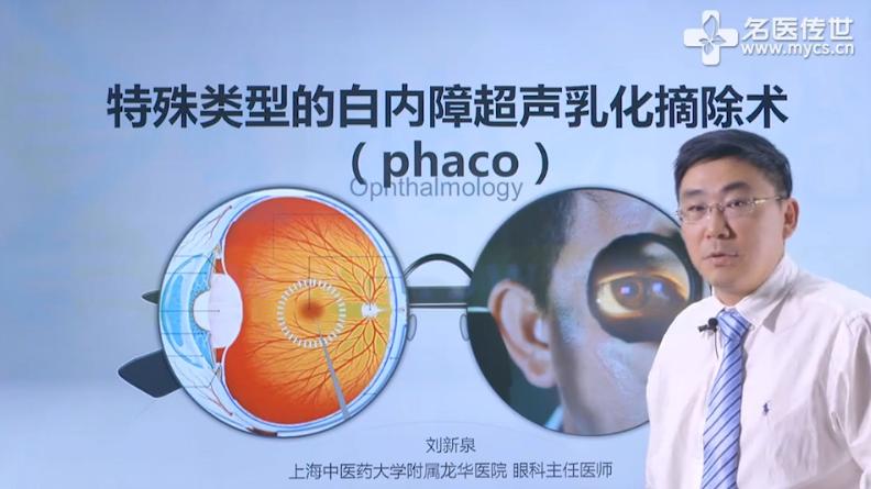 刘新泉:特殊类型的白内障超声乳化摘除术(phaco)(第1P-总2P)