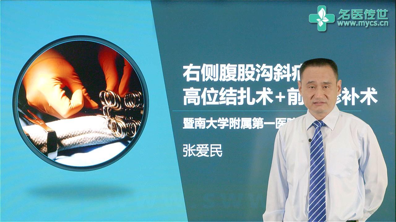 张爱民:右侧腹股沟斜疝高位结扎术+前壁修补术(第2P-总2P)