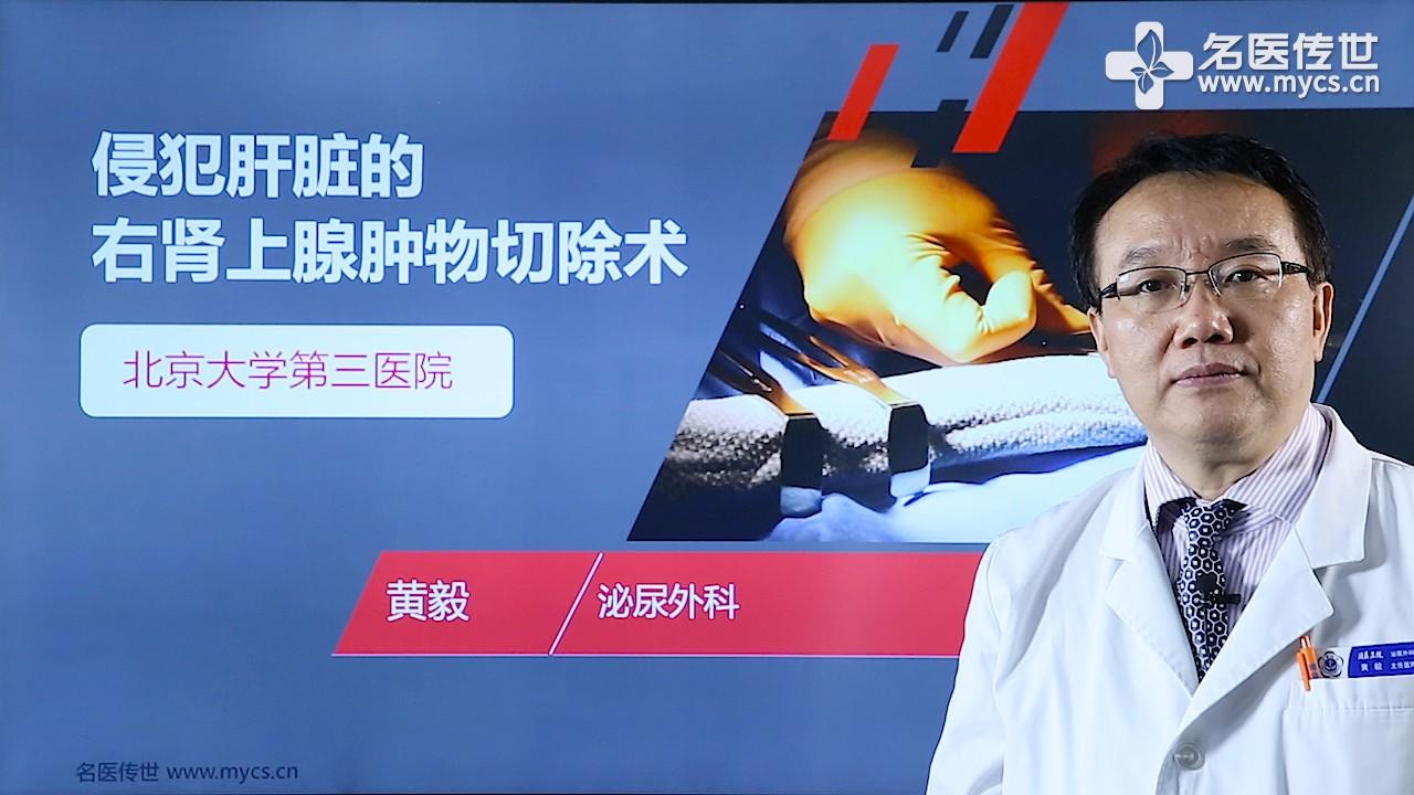 黄毅:侵犯肝脏的右肾上腺肿物切除术